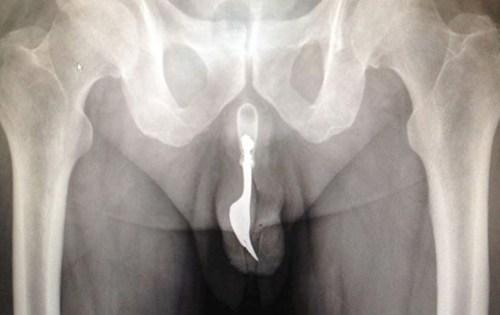 Sextoys mắc kẹt trong âm đạo